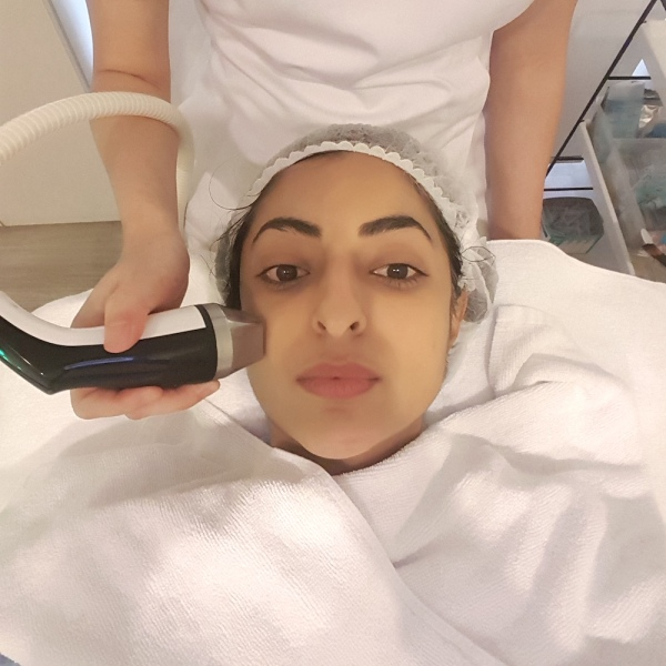 DRx Clinic, antiageing treatments, younger skin, Cryotherapy, microneedling,