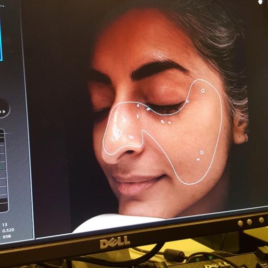 Pico Toning Laser, Dr Calvin Chan, laser treatments, rejuvenating skin treatments, antiageing skin treatments